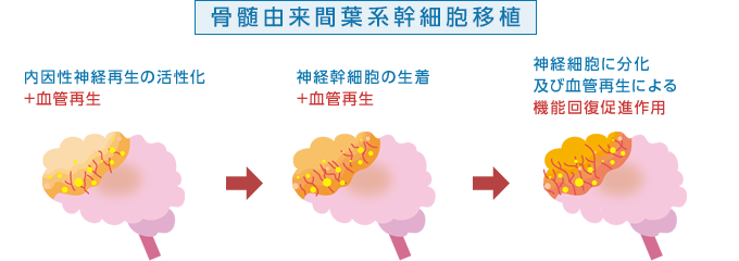 血管再生イメージ 骨髄由来間葉系幹細胞移植