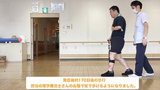 発症後170日 担当の理学療法士さんのお陰で杖で歩けるようになりました。